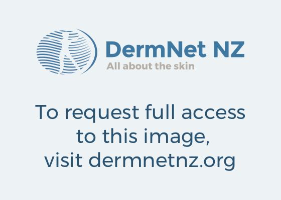 Drug Induced Skin Pigmentation