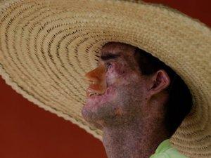 Persona que padece xeroderma pitmentosum en la ciudad brasileña de Arara