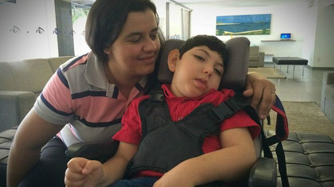 Cleciana Santos lleva cinco años luchando contra la microcefalia de su hijo, Emanuel Eduardo