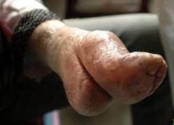 pies-de-loto-ancianos