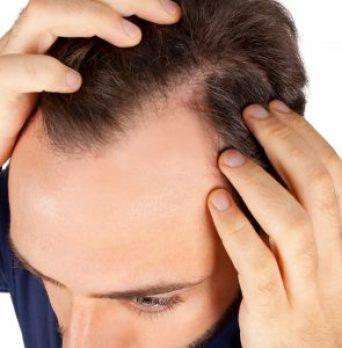 espinillas-en-la-linea-del-cabello