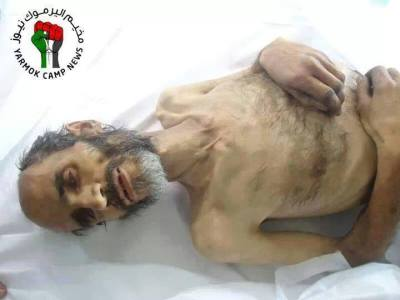 Famine Syrie1