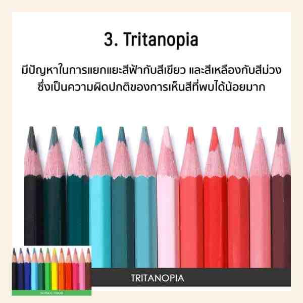 ตาบอดสี tritanopia คือ