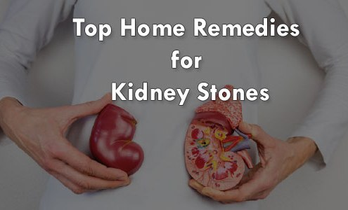 Top-Home-Remedies-for-Kidney-Stones