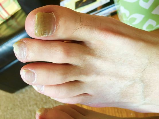 white spots on toenails after pedicure