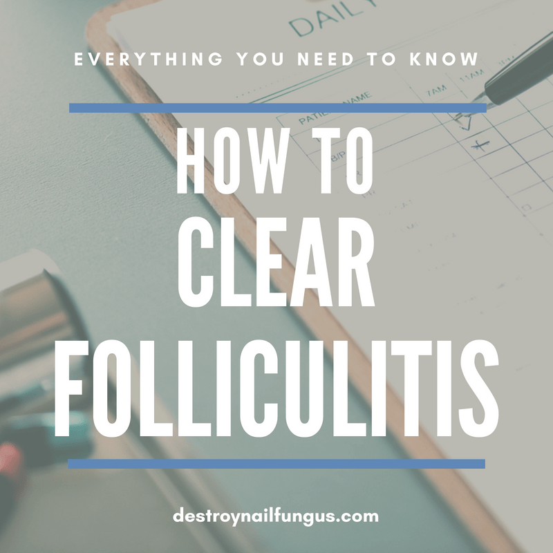 how to clear folliculitis
