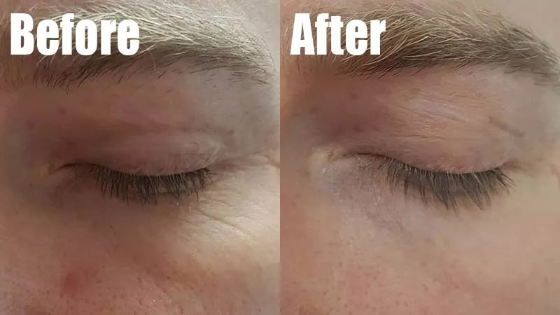 before and after photos of face where sea moss gel has resulted in healthier looking skin with a focus on the closeup around the eyes