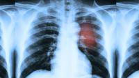 AHA, Alphabet put aside $seventy five Million To cure Coronary heart disease
