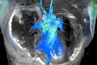 Arterys, GE Healthcare to Roll Out Next-Gen MRI Scans of Heart