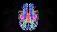 Want To Know What Your Brain Does When It Hears A Question?