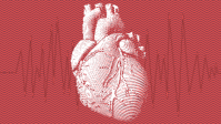 Having A Heart Attack? This AI Helps Emergency Dispatchers Find Out