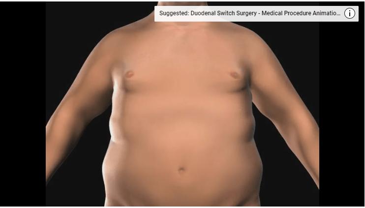 Stomach Sleeve Surgery Sleeve Gastrectomy Procedure Dr Bagshahi