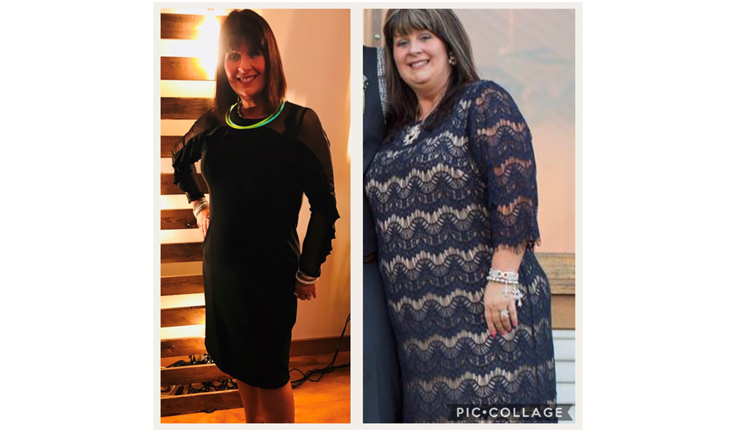 Haylee Website Size Weight Loss Surgery Fort Worth