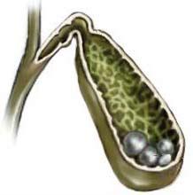 Желчекаменная болезнь: симптомы, диагностика, лечение