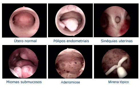 Distintos tipos de imágenes que se pueden obtener por la visualización histeroscópica de la cavidad uterina y el tratamiento de distintas entidades.