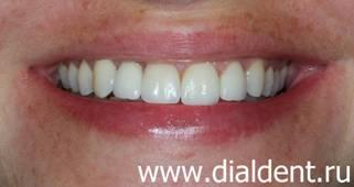 Исправление кривых зубов. Имплантация. И реставрация ...