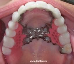 Бюгельный протез, металлокерамические коронки, зубные ...