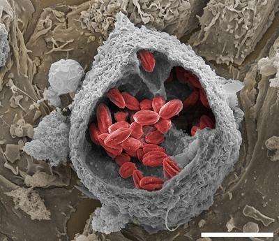 Nanotecnologia viabiliza novo medicamento contra leishmaniose