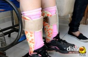 Mariane usa aparelhos para andar