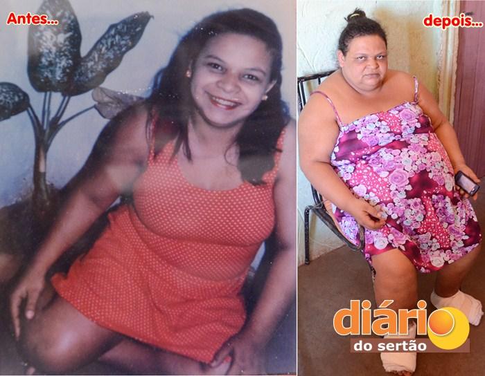 Atualmente, Maria Aparecida pesa mais de 130 quilos (foto: Charley Garrido)