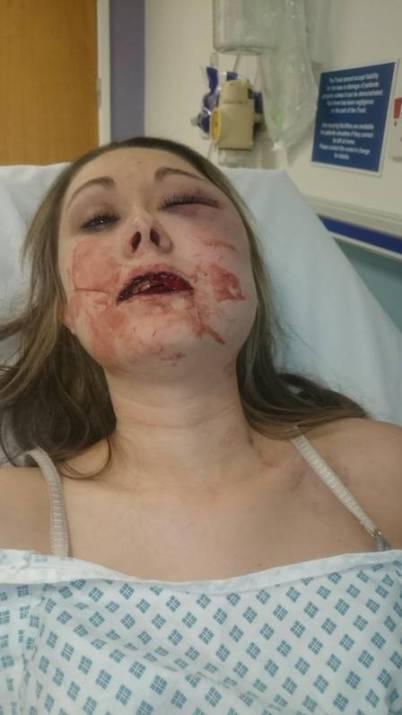 Jovem foi internada após o ataque (Foto: Facebook / Reprodução)