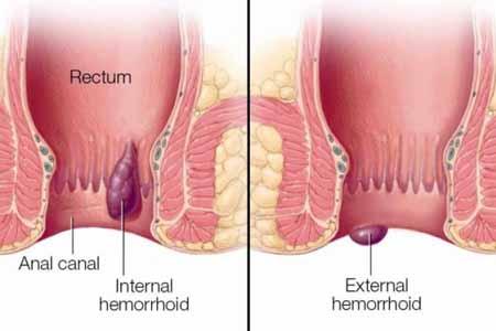 Uno de los principales factores en la prevención de las hemorroides es poder defecar regularmente, sin pujar.