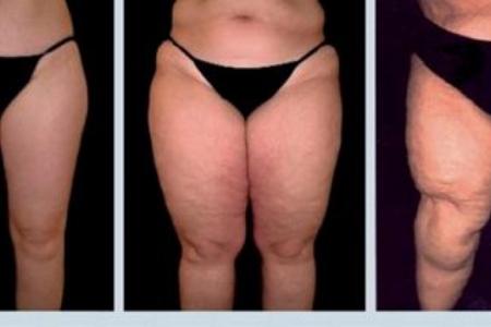 """El lipedema (también conocido como """"síndrome de la inflamación"""") es una enfermedad crónica que afecta en mayor parte a las mujeres."""