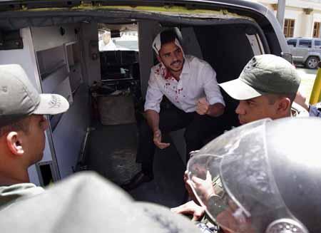 Momentos en que los diputados opositores Américo de Gracia (izq.) y Andrés Armas, son movilizados para que recibieron asistencia médicas, luego e resultar heridos en sus cabezas.