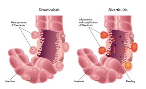 Diverticulitis Symptoms and Complications