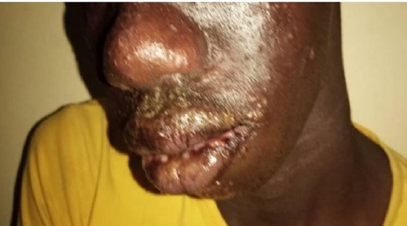 Une étrange maladie touche des pêcheurs sénégalais, Thiaroye Sur-Mer troublée [ Photos ]
