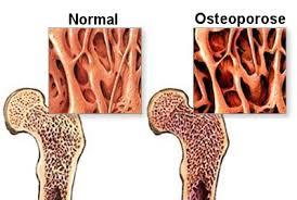 Tudo sobre a osteoporose