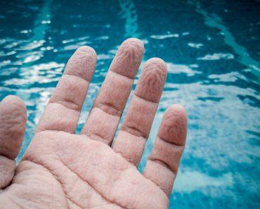 Por que nossos dedos podam quando ficam molhados?
