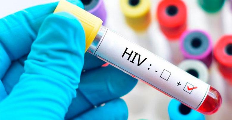 primeiros sintomas do HIV