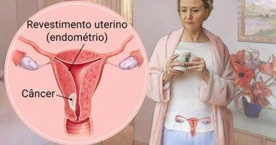 câncer de endométrio