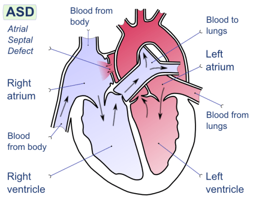 Difference Between Left and Right Side of Heart_Fig 02