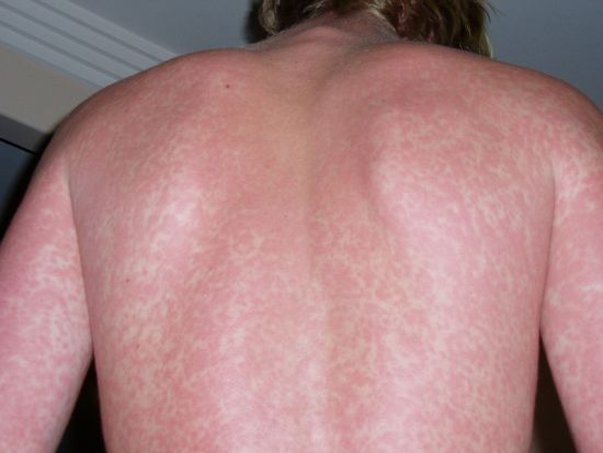 main difference - hives vs rash