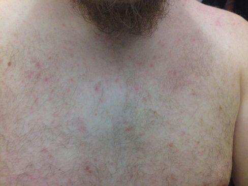 Key Difference - Heat Rash vs Allergic Reaction