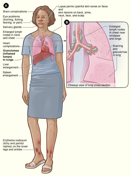 Difference Between Sarcoidosis and Tuberculosis