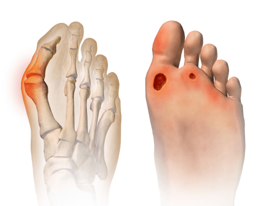 Difference Between Bunion and Corn