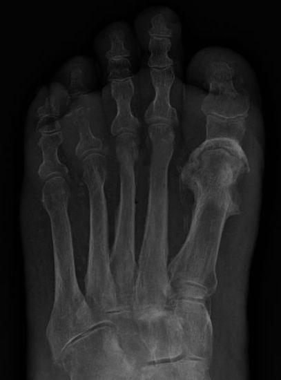 Difference Between Osteomyelitis and Septic Arthritis