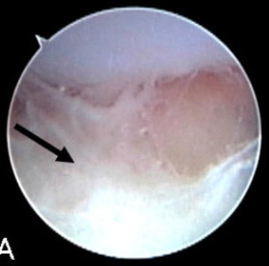 Key Difference - Osteomyelitis vs Septic Arthritis