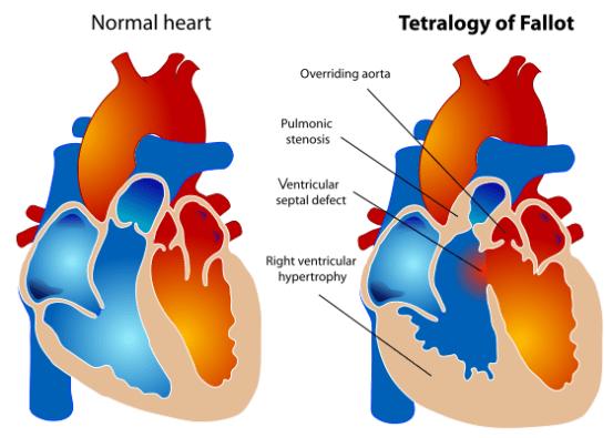 Difference Between Cyanotic and Acyanotic Congenital Heart Defects