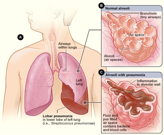 Difference Between Hypothermia and Pneumonia
