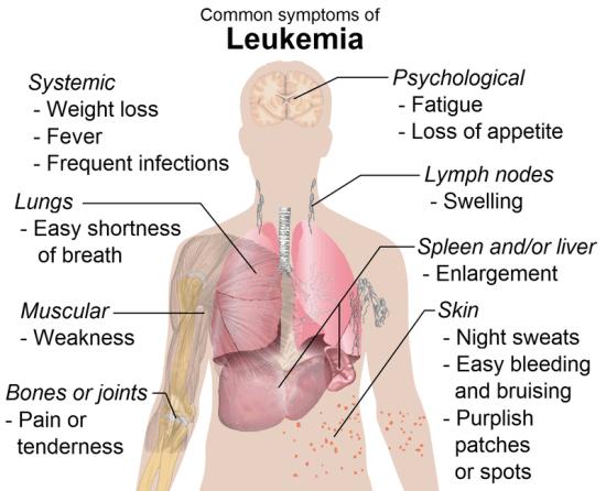 Key Difference - MDS vs Leukemia