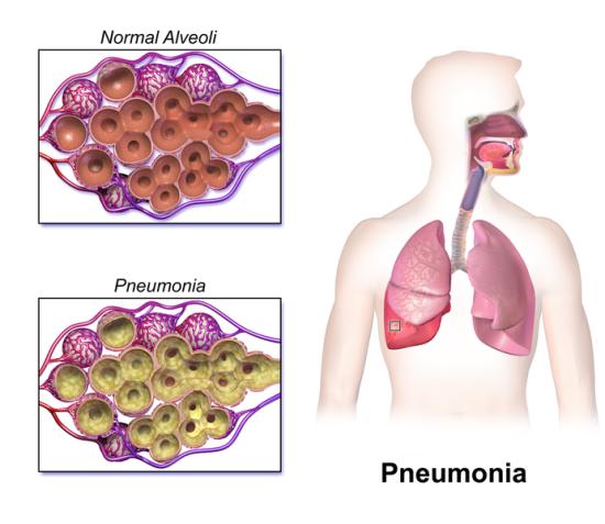 Difference Between Pneumonia and Pneumonitis