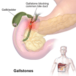 Difference Between Cholecystitis and Cholelithiasis