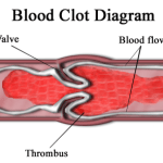 Difference Between Thrombus and Embolus