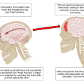Difference Between Concussion and Contusion