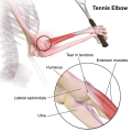 Difference Between Golfer's Elbow and Tennis Elbow