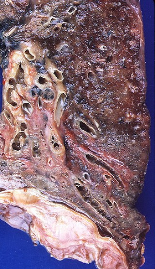 Key Difference Between Interstitial Lung Disease and Bronchiectasis